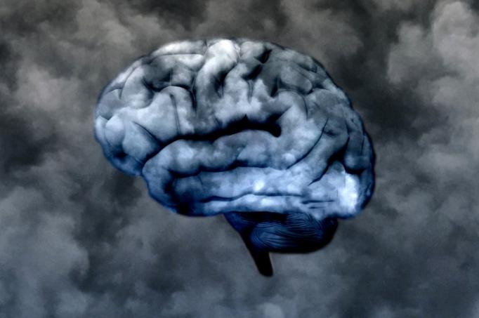 18-brain-default-state-4.w710.h473